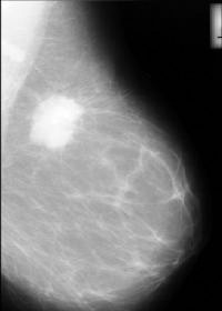Digital Mammography Research At Purdue University